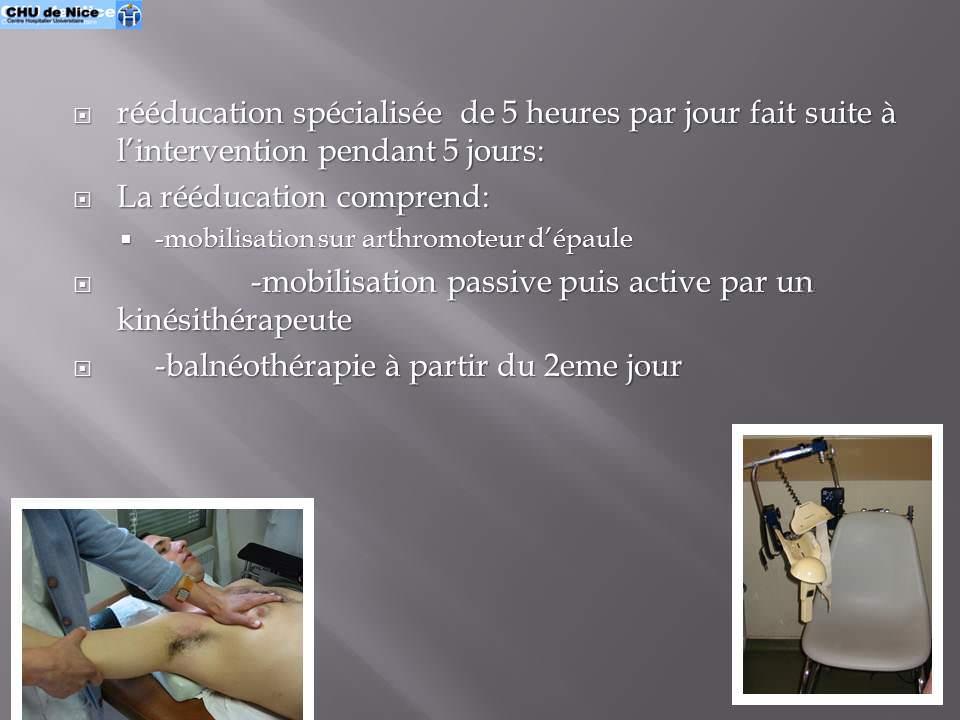 la capsulite r tractile de a z 3 interventional radiology. Black Bedroom Furniture Sets. Home Design Ideas